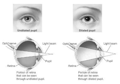 graphic depicting impact of eye dilation